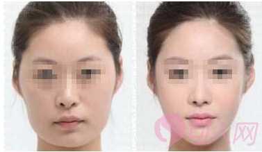 改脸型手术术前的注意事项 -可人网